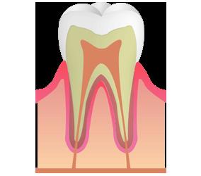 C0:初期段階の虫歯