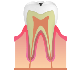 C1:虫歯がエナメル層に到達