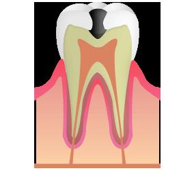 C2:虫歯が象牙質に到達
