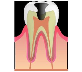 C3:虫歯が神経に到達