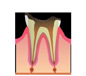 C4: 虫歯が歯の根に到達